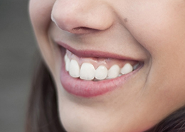 Closeup of a teenager smiling