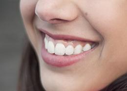 Closeup of a teenager smiling