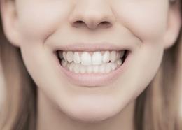Sorriso femminile
